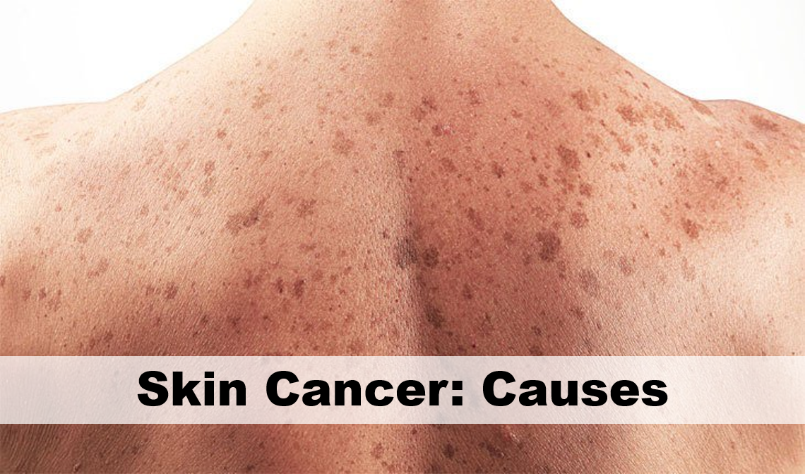 Skin Cancer Causes First Health Station